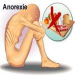 Comment aider votre fille anorexique ?